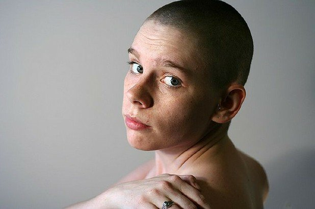 Half of Addiction Therapists OK Moderate Drinking