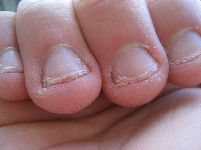 article specific bite your nails