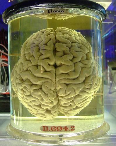 Heavy and Long-Term Marijuana Use Causes Brain Shrinkage