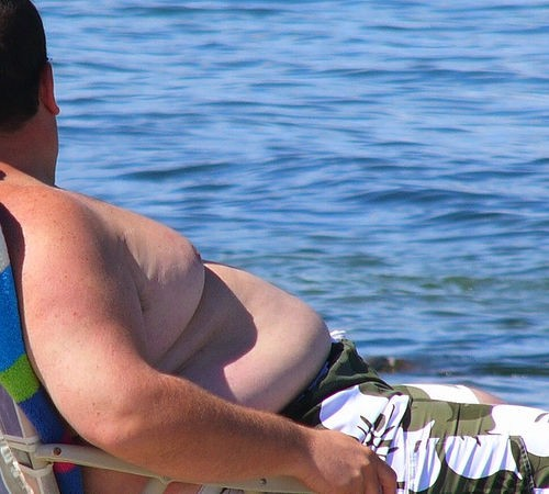 In UK, Obesity to Become Leading Cause of Cirrhosis within 20 Years