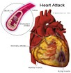 Heavy Drinking, High Blood Pressure and the Risk of Heart Attack and Stroke